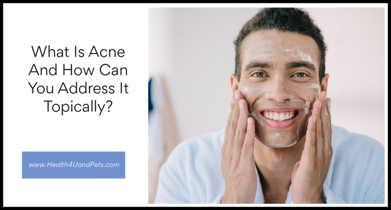 What Is Acne And How Can You Address It Topically www.Health4UandPets.com