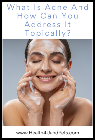 What Is Acne And How Can You Address It Topically - www.Health4UandPets.com